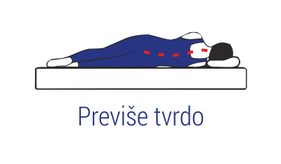 Madrac previse tvrd